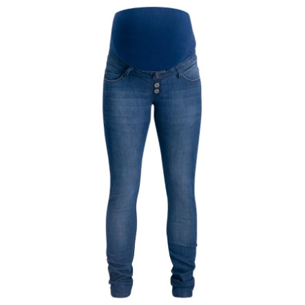 SUPERMOM Umstandsjeans Skinny Buttons Blue Denim